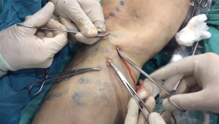 Флебэктомия - операция по удалению вен