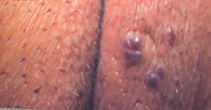Варикоз на половых губах