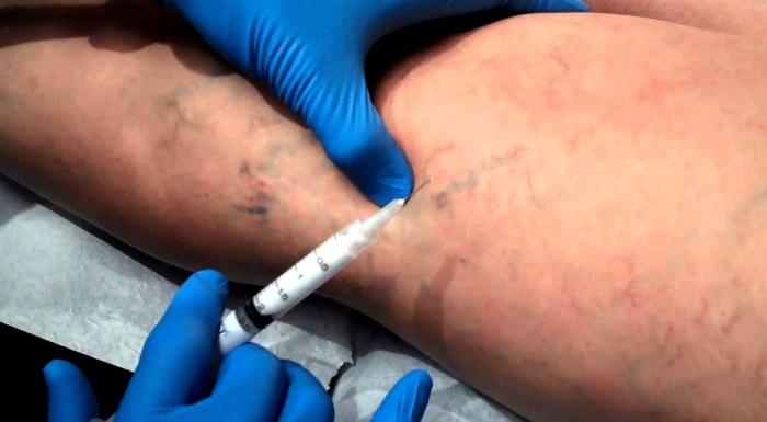 Лечение мужского варикоза: склеротерапия