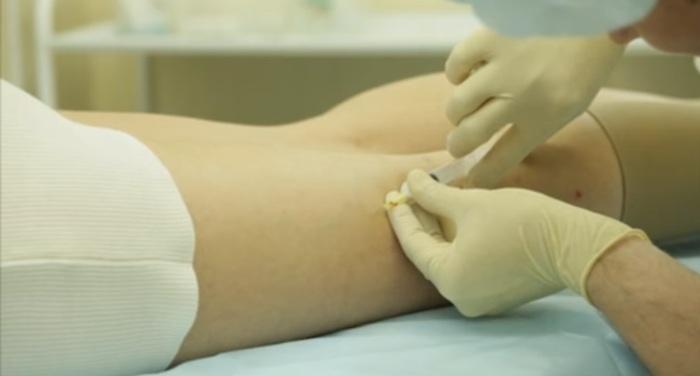 Лечение варикоза ног у женщин