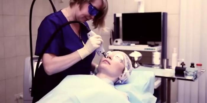 Операция по удалению сосудистых звездочек лазером на лице