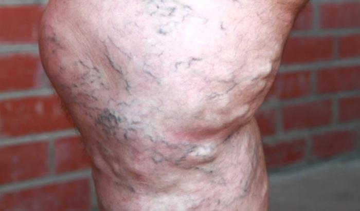 Стадии варикоза ног у мужчин