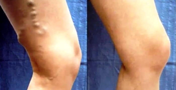 Тромбоз вен: до и после лечения