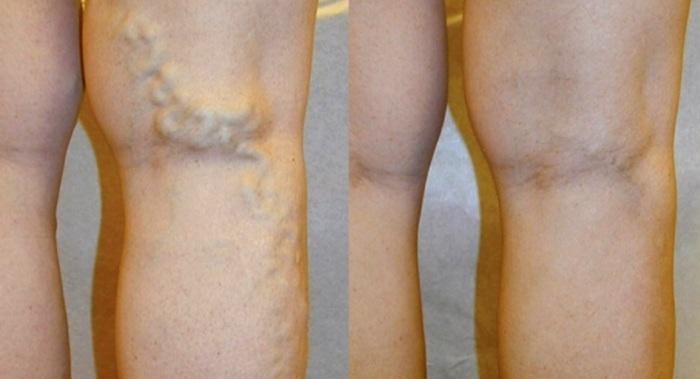 Варикоз ног у мужчин: до и после лечения