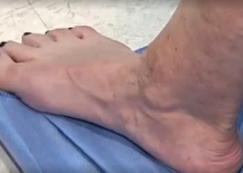 Варикоз: лечить или не лечить? Чем опасен варикоз? Как лечить варикоз на ногах?