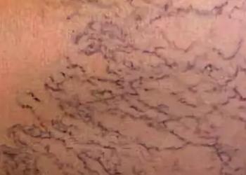 Ретикулярный варикоз нижних конечностей - фото, причины и лечение
