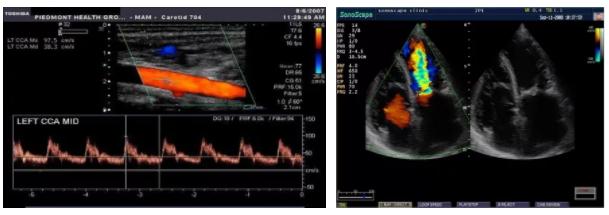 Метод ЦДК (цветного допплеровского сканирования)