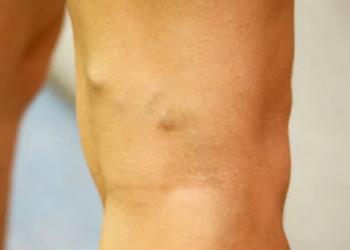 Что делать если под коленкой на ноге вздулась вена и болит