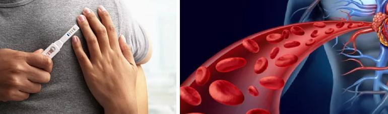 Тромбофилия при беременности. Генетическая тромбофилия при беременности — Беременность. Беременность по неделям.