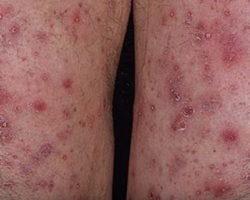 Фото: варикозный дерматит нижних конечностей